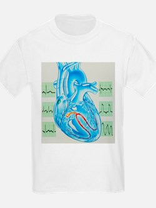 Artwork of cardiac arrhythmia with heart - T-Shirt