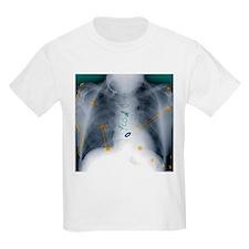 Heart surgery, X-ray - T-Shirt