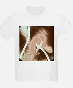 Gall bladder and liver - T-Shirt
