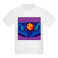 Uterine fibroid, MRI scan - T-Shirt