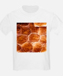 Skin surface, SEM - T-Shirt