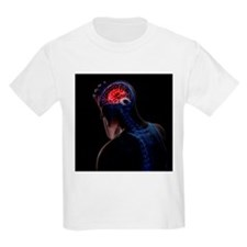 Headache, conceptual artwork - T-Shirt