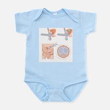 Impotence treatments, artwork - Infant Bodysuit