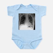 Tension pneumothorax, X-ray - Infant Bodysuit