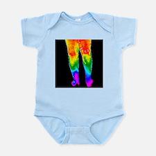 Varicose veins, thermogram - Infant Bodysuit