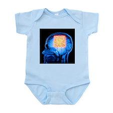 Brain MRI scan with Alzheimer's QR code - Infant B