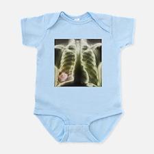 Pulmonary tapeworm cysts, X-ray - Infant Bodysuit