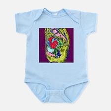 Uterine fibroid, MRI scan - Infant Bodysuit