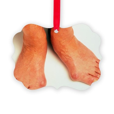Bunions - Picture Ornament