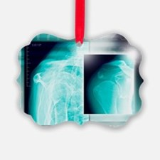 Fractured shoulder, X-rays - Ornament