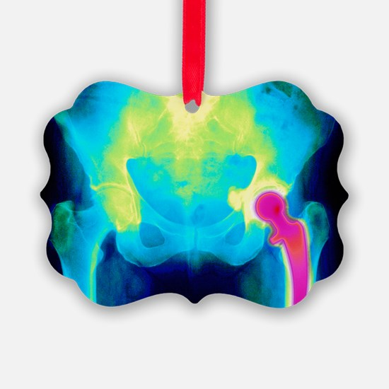 Coloured X-ray of an artificial hip joint - Pictur