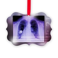 Heart pacemaker, X-ray - Ornament