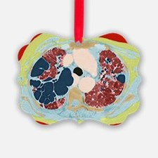 Lung disorder, CT scan - Ornament