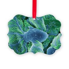 Kidney glomeruli, SEM - Ornament