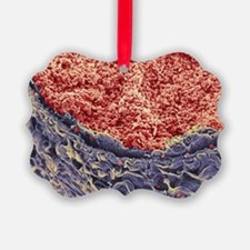 Red blood cells in blood vessel - Ornament