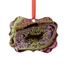 Seminiferous tubule of testis - Ornament