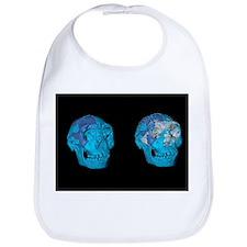 Turkana boy skulls, 3D computer image - Bib