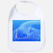Chromatogram, 2D View - Bib