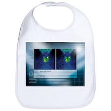 Hypothyroidism, gamma camera scan - Bib