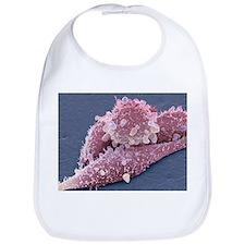 Lung cancer cells, SEM - Bib