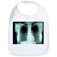 Lungs, X-ray - Bib