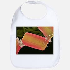 Diatom alga, SEM - Bib