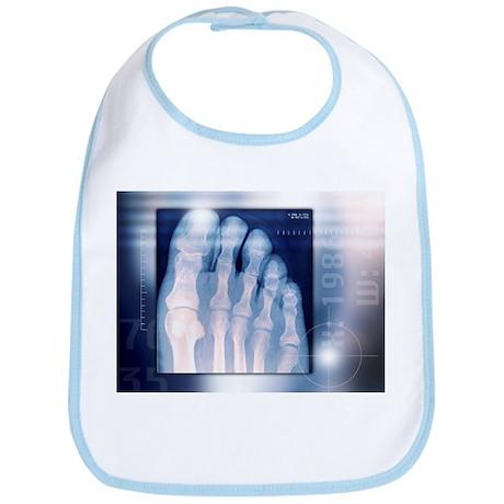Toes, X-ray - Bib