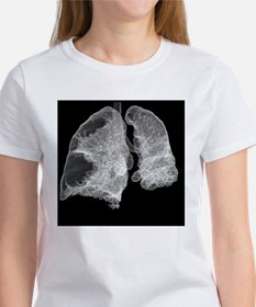 Emphysema of the lungs, CT scan - Women's T-Shirt