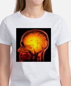 Brain anatomy, MRI scan - Tee