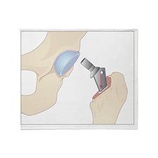 Hip replacement, artwork - Throw Blanket