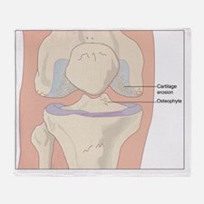 Osteoarthritic knee, artwork - Throw Blanket