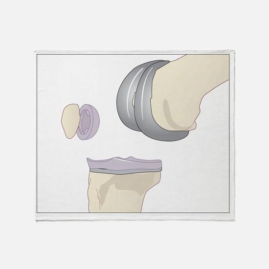 Knee replacement, artwork - Throw Blanket