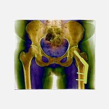 Fractured femur - Throw Blanket