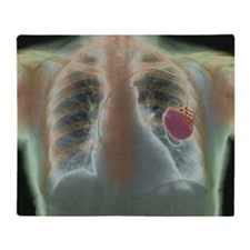 Heart pacemaker, X-ray - Throw Blanket