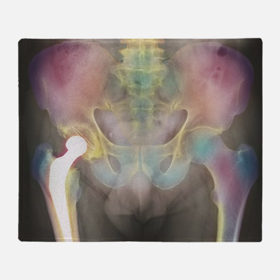 Hip replacement, X-ray - Throw Blanket
