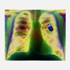 Coloured X-ray of chest showing heart pacemaker -