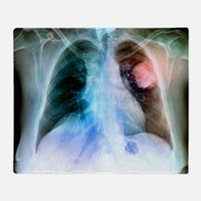 Lung cancer, X-ray - Throw Blanket