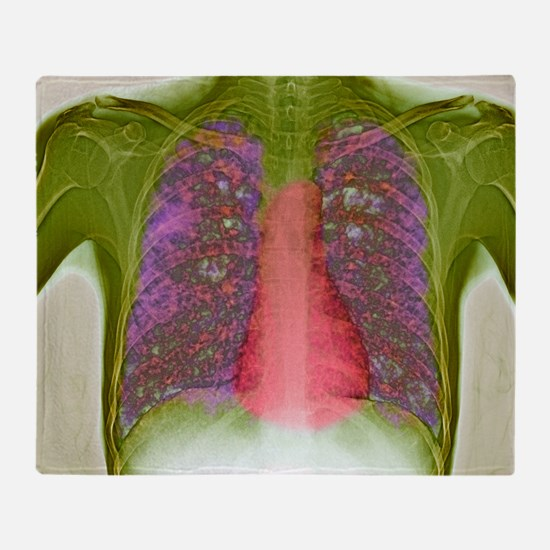 Tuberculosis, X-ray - Throw Blanket