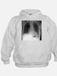 Tension pneumothorax, X-ray - Hoodie