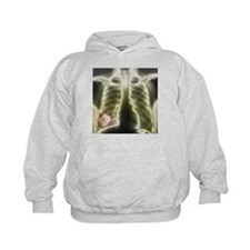 Pulmonary tapeworm cysts, X-ray - Hoodie