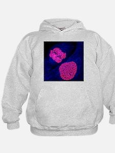 Breast cancer cells - Hoodie