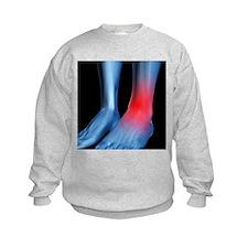 Ankle pain, conceptual artwork - Sweatshirt