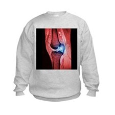 Anterior cruciate ligament tear, CT scan - Sweatshirt
