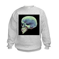 Human skull, X-ray - Sweatshirt