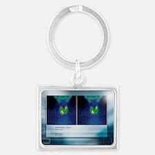 Hypothyroidism, gamma camera scan - Landscape Keyc