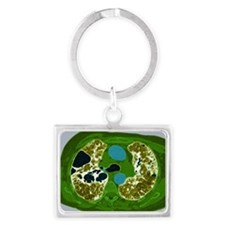 Lung fibrosis, CT scan - Landscape Keychain