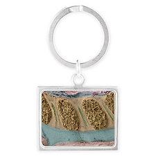 Foetal spinal column - Landscape Keychain