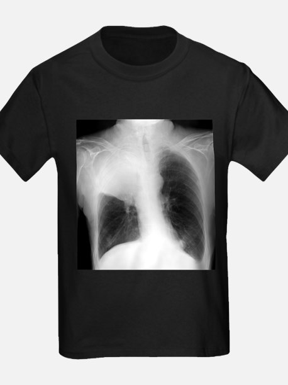Lung cancer, X-ray - Kid's Dark T-Shirt