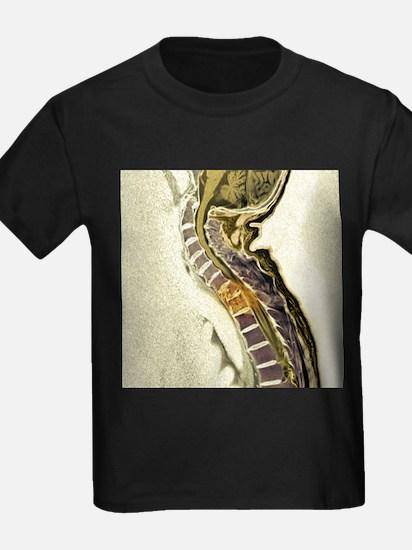 Secondary tumours - Kid's Dark T-Shirt