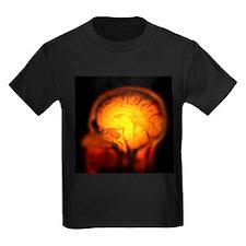 Brain anatomy, MRI scan - Kid's Dark T-Shirt